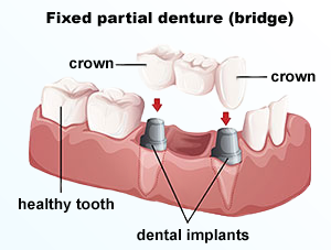 Crowns Bridges Usually Require Two Trips To The Dentists Office During Initial Visit Surrounding Teeth Are Numbed With A Local Anesthetic